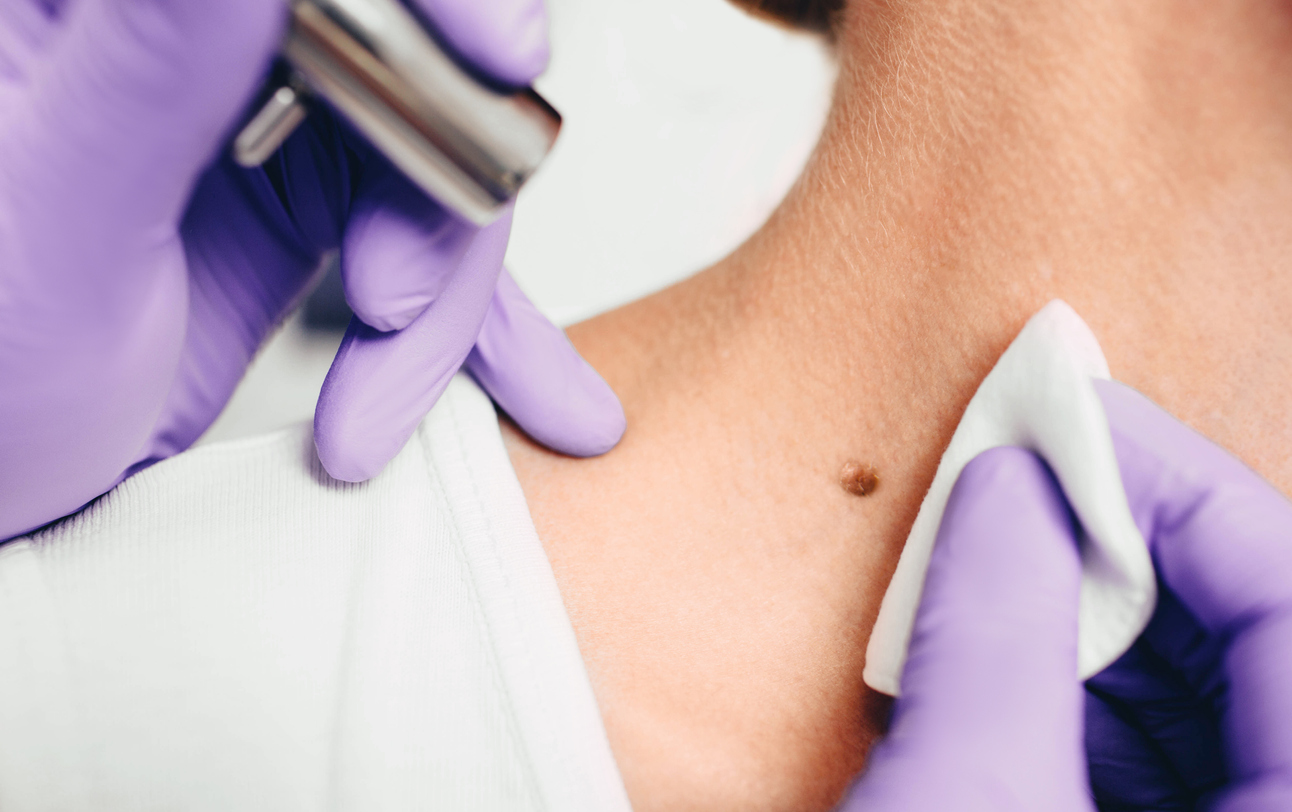 woman undergoing mole removal on her neck with rejuvenique medspa