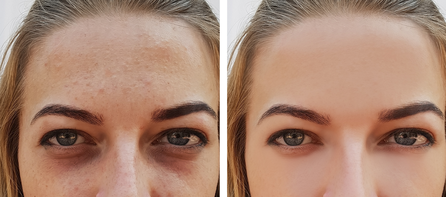 Knowing the causes of dark circles can help you keep healthier skin